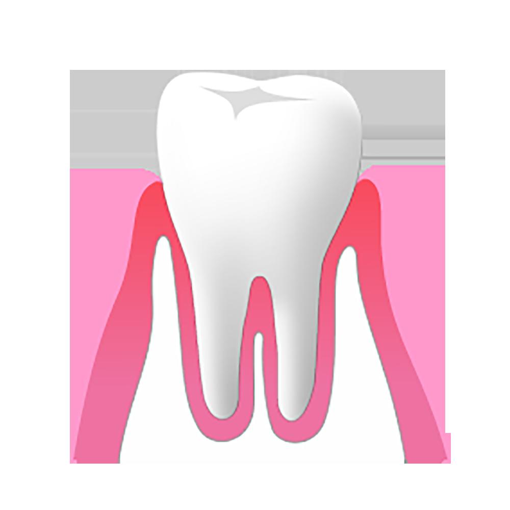 軽度の歯周病
